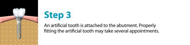 dental-implants-missing-tooth-regina-downtown-detnal-regina