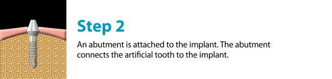 dental-implants-missing-tooth-regina-downtown-detnal