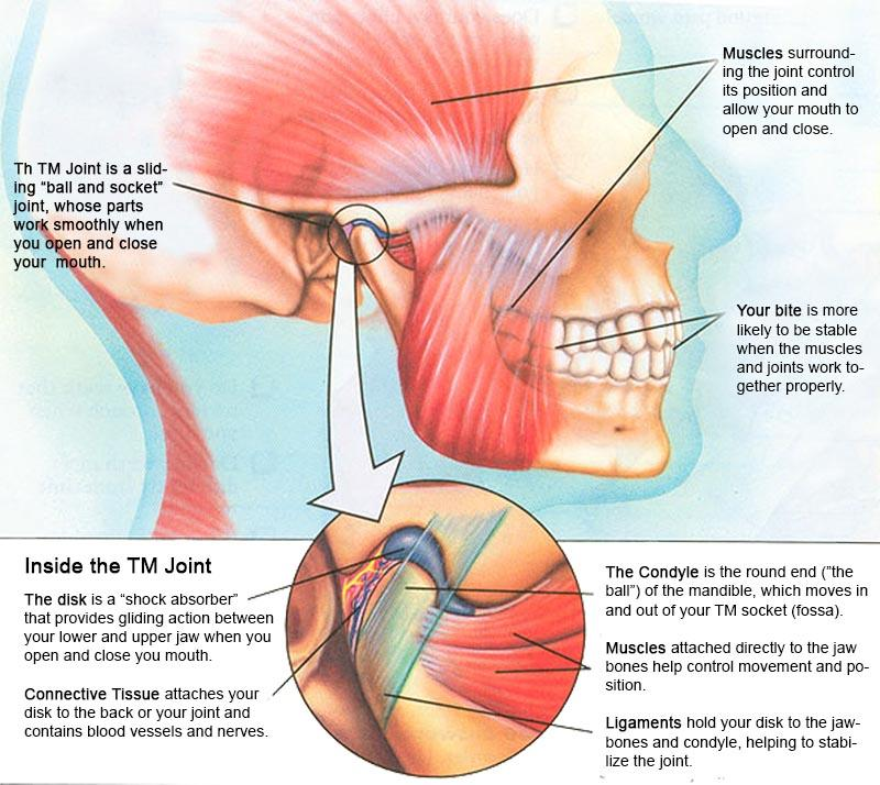 Tmj Tmd Pain Diagram Downtown Dental Centre