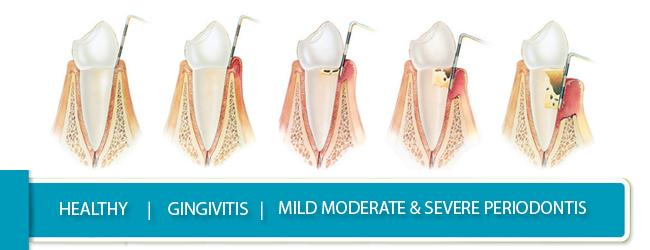 stages-of-periodontis-Periodontal-Therapy