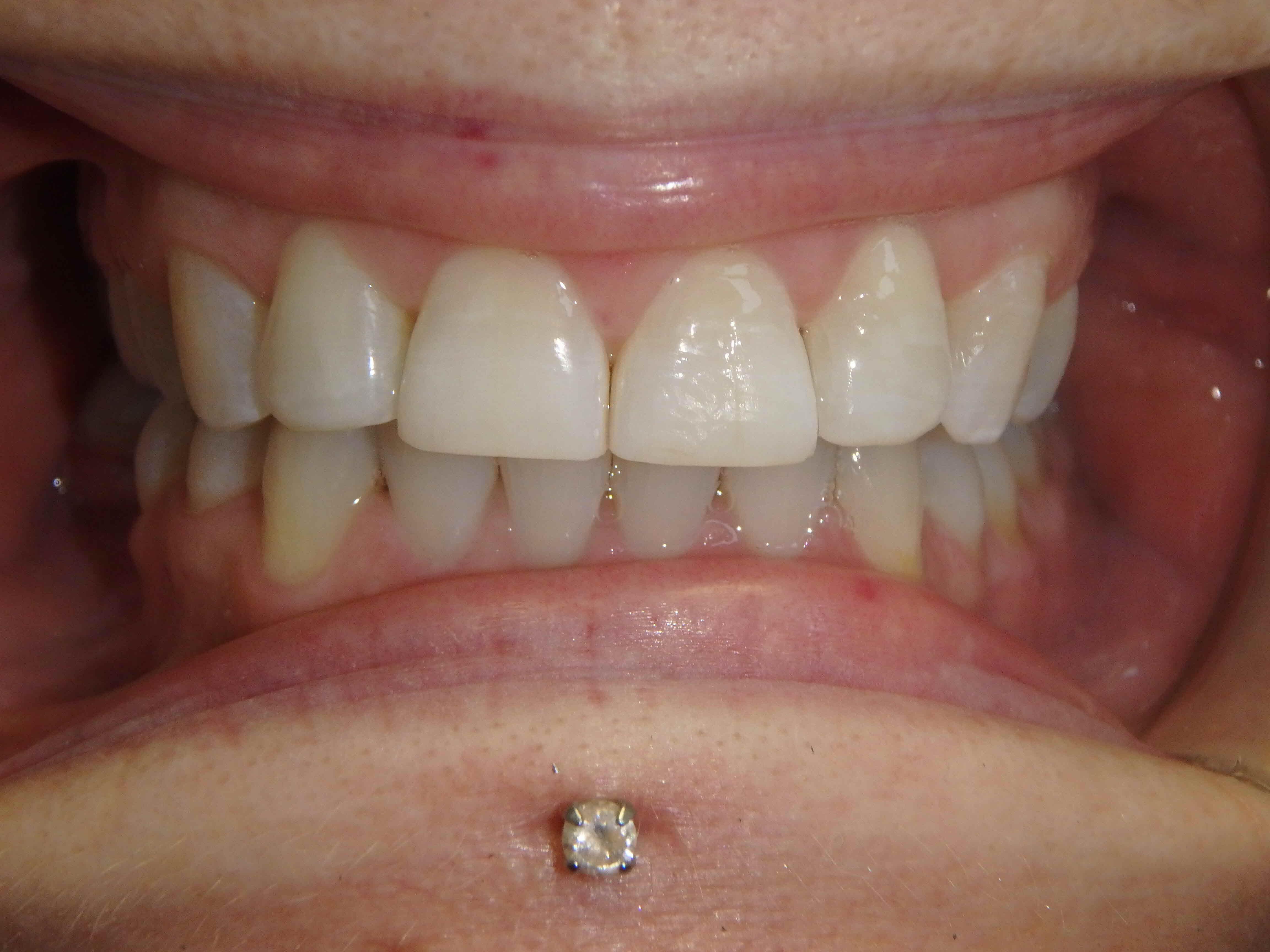 Completion of Invisalign treatment